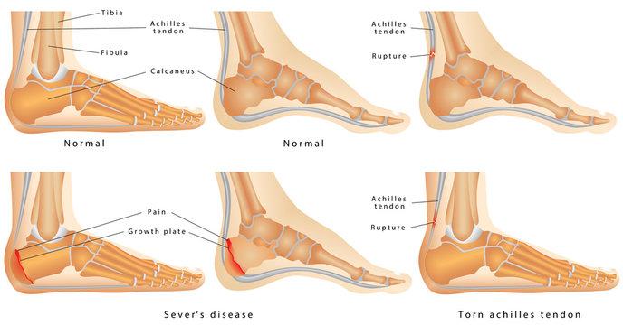 Ankle, Calcaneal Apophysitis, Achilles tendon