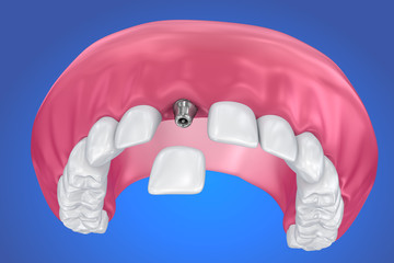 Tooth implant and crown installation process. Medically accurate 3D illustration