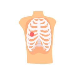 Rib injury pain cartoon vector Illustration