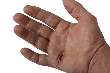 A hand with stitches after surgery