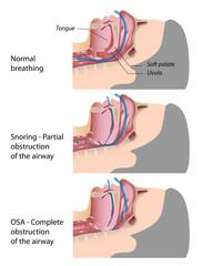 Snoring and OSA - Obstructive sleep apnea