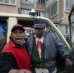 INJURED MAN DURING A PROTEST IN EL ALTO.