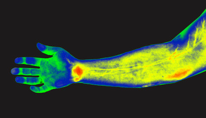 Human hand thermography