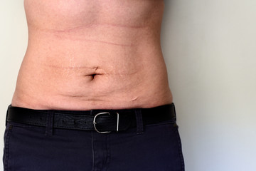 Woman belly with stretch marks and scars
