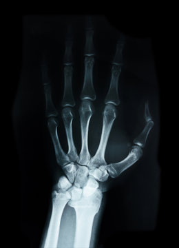 Carpal bones Human X Ray.