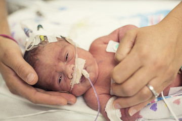 Newborn premature baby in the NICU intensive care