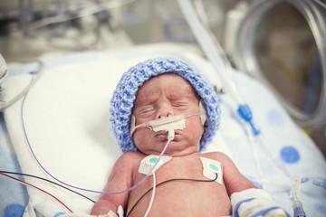 Newborn premature baby in the NICU intensive care