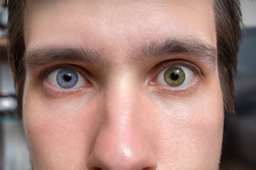 Young man with heterochromia - two different colored eyes. Contact lenses.