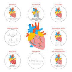Cartoon Heart Disease Infographic Card or Poster. Vector