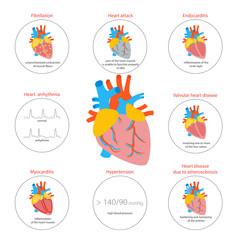 Cartoon Heart Disease Infographic Card or Poster. Vector