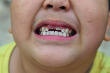 view of an  Asian boy with broken teeth