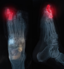 X-ray feet / X-ray of foot fingers / Radiography with deformed toes.