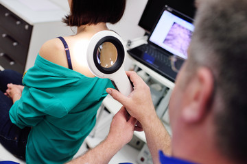 Prevention of melanoma. The doctor examines birthmarks or other benign neoplasms of the patient with a special electronic magnifier.