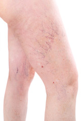 legs with spider varicose veins mole