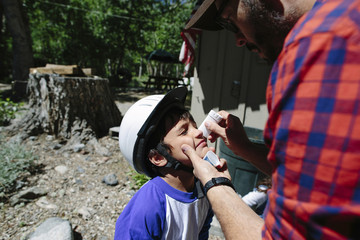 Father applying medicine on son's nose at Inyo National Forest
