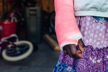 Pink cast on a broken arm of an African American girl