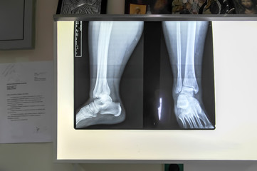 Medical feet bone radiography photo