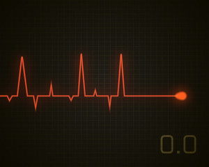 Heart beat dead graphic. Vector heart pulse isolated on black.