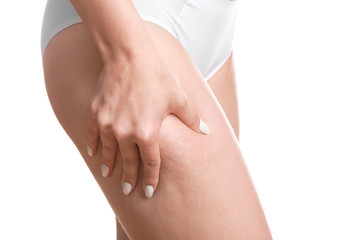 Woman with cellulite problem on white background