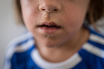 Up Close Photograph Of A Child's Sweaty Mouth And Nose