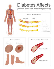 Diabetes affects the nerves and vessels. The Nerves in leg shrivel when blood vessels disappear. Foot ulcers are a common complication of poorly controlled diabetes. Info graphic vector.