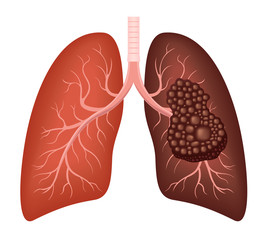 healthy lung and cancer lung vector