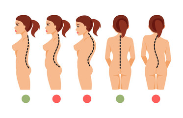 Types of curvature of the spine