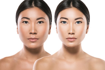 Asian woman after plastic surgery