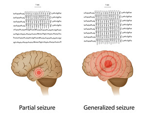 EEG in partial and generalized epilepsy
