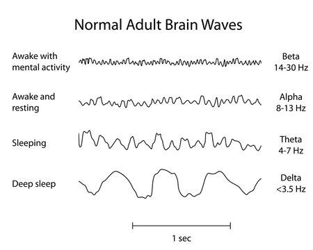 Normal Brain Waves EEG