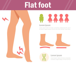 Flat foot. Vector. Cartoon. Isolated