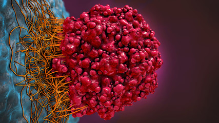 3d illustration of a brain cancer cell