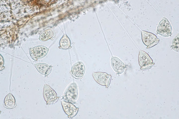 Vorticella is a genus of protozoan under microscope view.