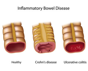 Comparing inflammatory bowel disease