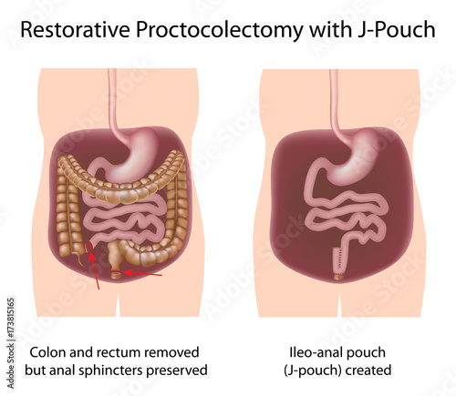 Restorative proctocolectomy procedure with J-pouch\