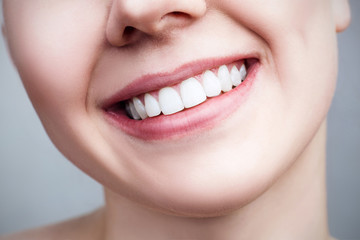 Close-up healthy smile of young woman.