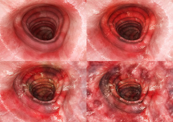 Colitis ulcerosa - all Stages- 3D rendering
