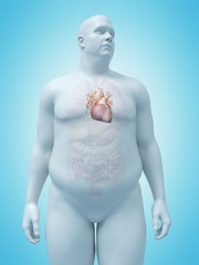 3d rendered medically accurate illustration of an overweight mans heart