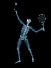 3d rendered medically accurate illustration of a tennis player x-ray