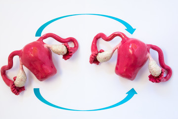 Uterus transplantation concept photo. Two anatomical models of uterus with ovaries with two arrows crossing over each other, symbolizing transplantation of human organs of female reproductive system