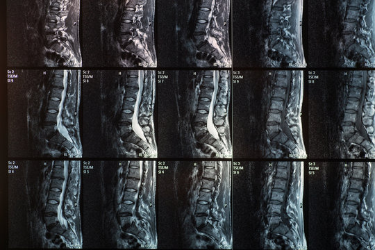Magnetic resonance of human spine with disc herniation and spondylolisthesis