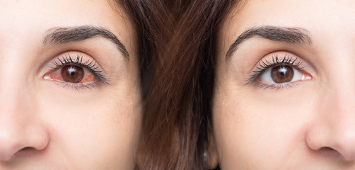 Woman with red eye before and after use of eyewash