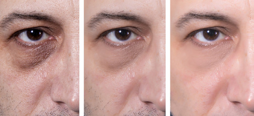 Dark eye circles treatment - BEFORE and AFTER