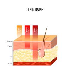 skin burn. Three degrees of burns.