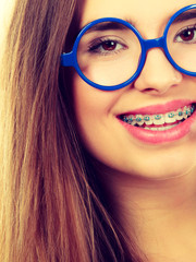 Nerdy woman showing her teeth with braces