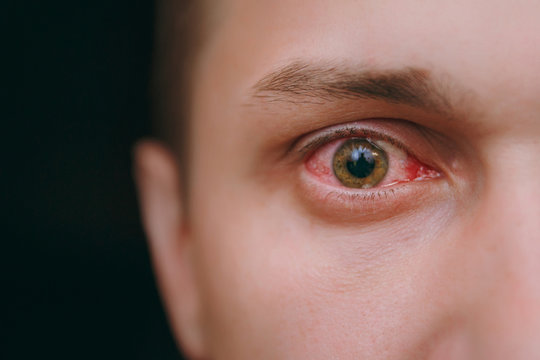 Close up of one annoyed red blood eye of a man affected by conjunctivitis