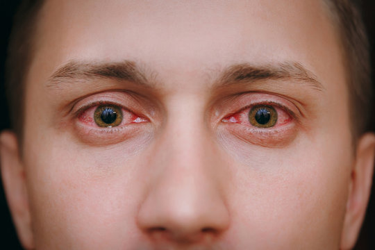 Close up of two annoyed red blood eyes of a man affected by conjunctivitis