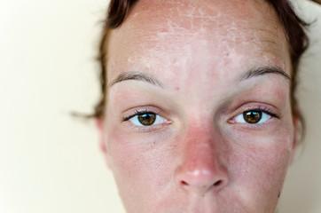 Sunburn and red skin