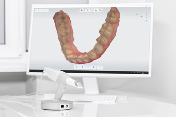 Dental 3d scanner and monitor in the dentist's office