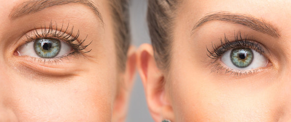 Woman eye bags before and after cosmetic treatment